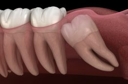 Merrylands Wisdom Tooth Dental Burwood